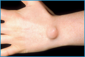 ganglion cyst doctor