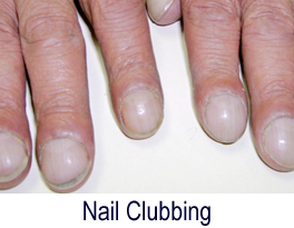 fingernails doctor Clinton Township