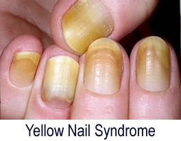 Fingernail Problems: Split, Yellow or Thick Nails - Macomb Hand Surgery
